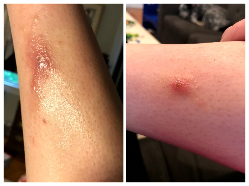 staph infection bug bite